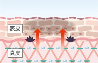 正常な肌のターンオーバー